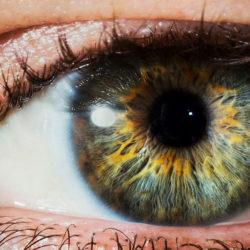 Tupozrakosť sa dá liečiť